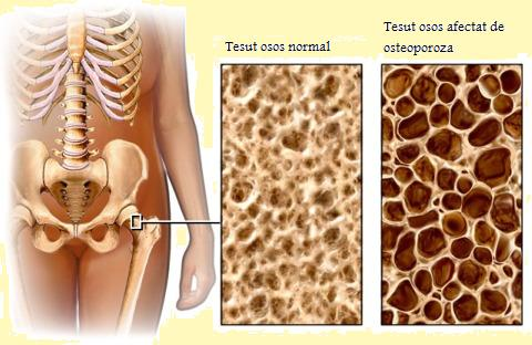 osteoporoza bolii osoase)