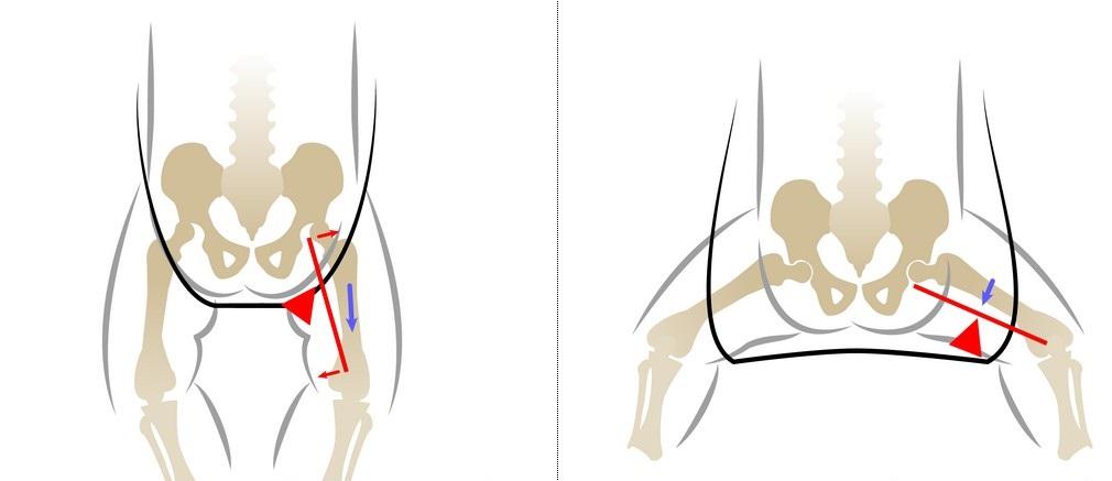 tratament subdezvoltat al articulației șoldului la un sugar)