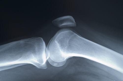 Osteoporoza: cauze, simptome si prevenire