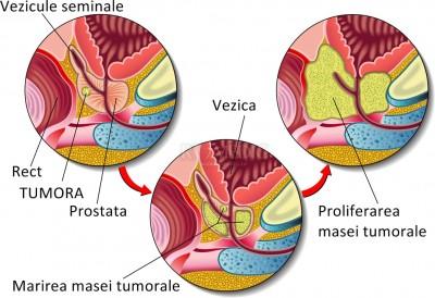 Hipertrofia benignă a prostatei poate degenera într-un cancer de prostată?
