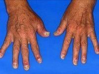 care tratează artrita psoriazică artroza 3 stadiul articulației genunchiului