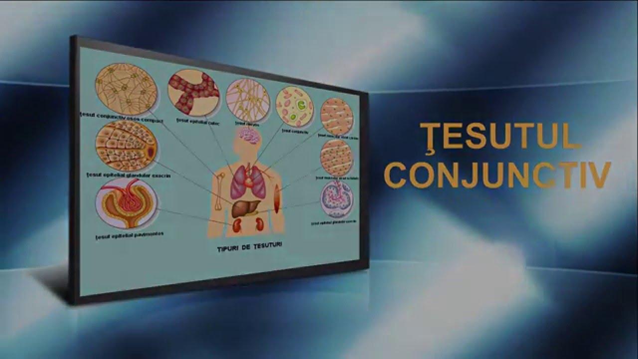 tratamentul sindromului displaziei de țesut conjunctiv