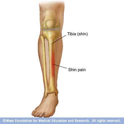Artrita simptomele și tratamentul articulației gleznei