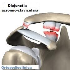 artroza articulației acromioclaviculare drepte)