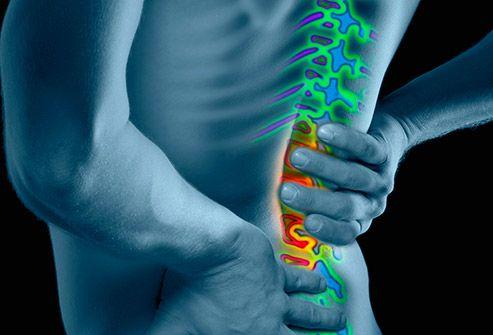 ce vitamină să se înțepe pentru dureri articulare)
