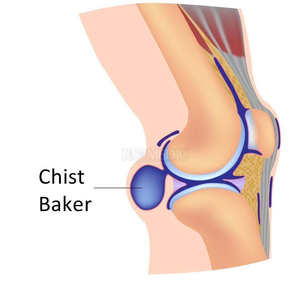 boli vasculare ale genunchiului)