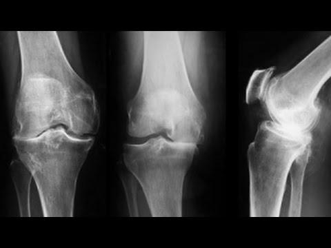 artroza deformantă a gradului 3 al articulației genunchiului)