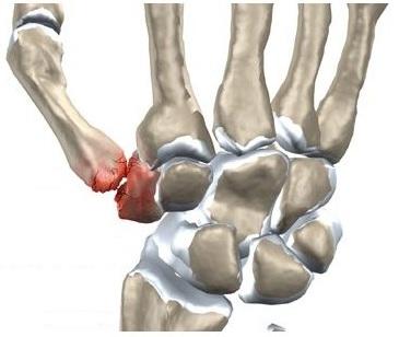 durere constantă în articulația mâinii)