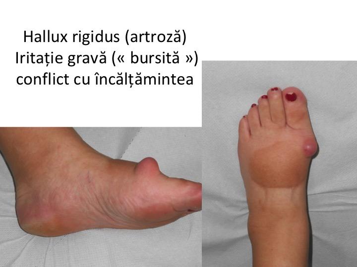 artrita purulentă a prognosticului gleznei)
