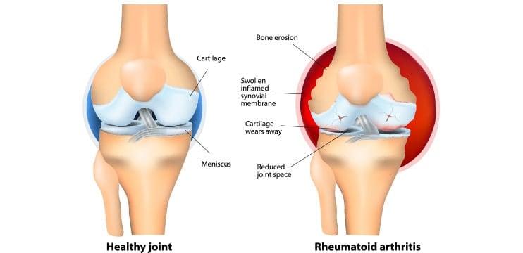 Omega 3 poate scădea inflamația articulară și diminua durerea? (studii)