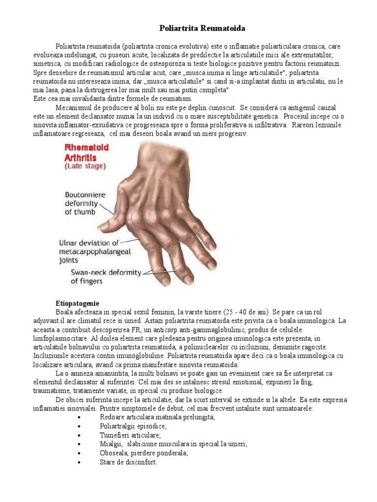 a fost tratată artrita reumatoidă anterioară)