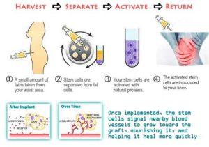costul tratării artrozei cu celule stem