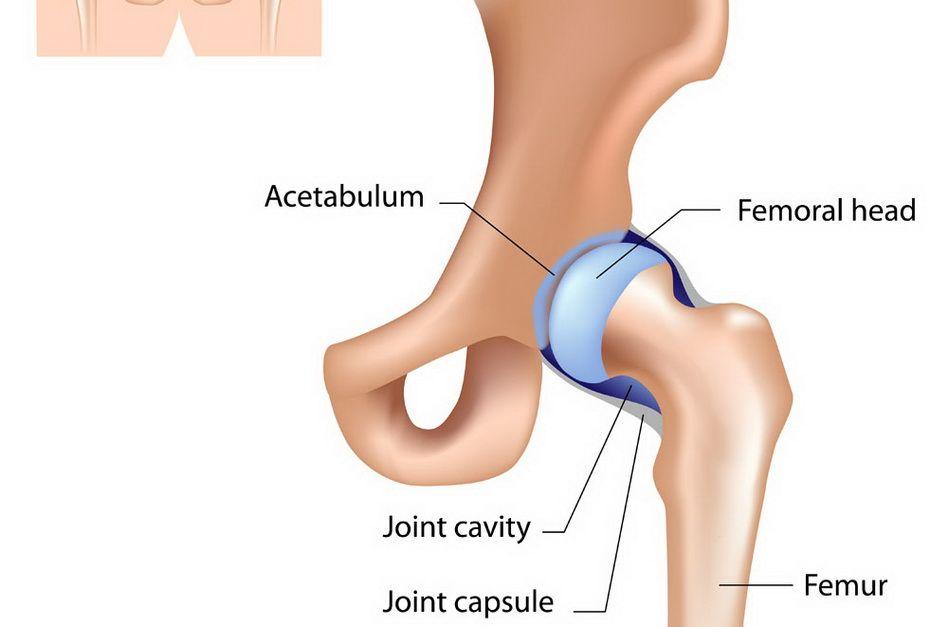 deformând artroza șoldului)