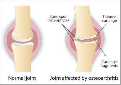artroza simptomelor articulației sternoclaviculare boala articulară a mucoasei sacului articular