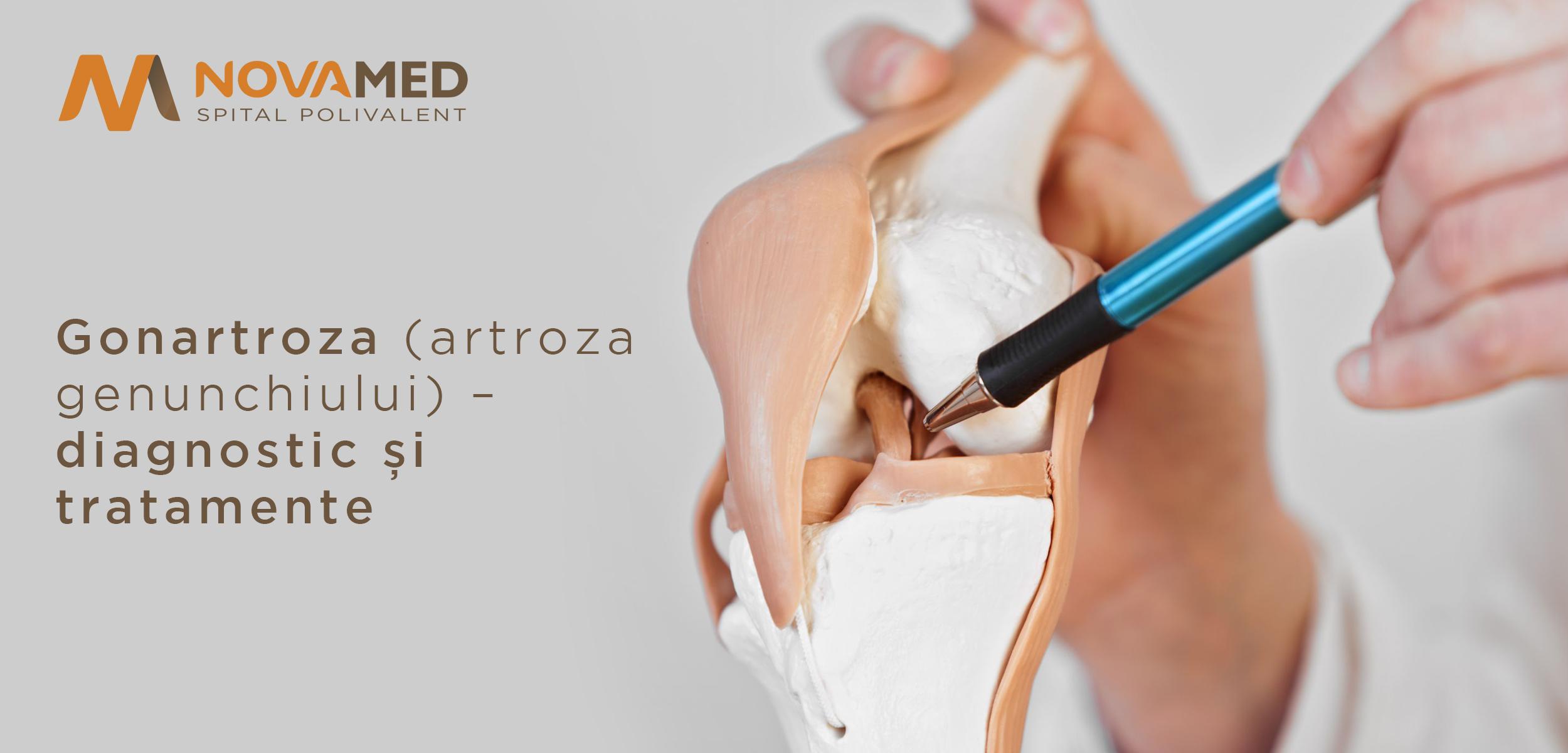 meniu de probă pentru artroza genunchiului)