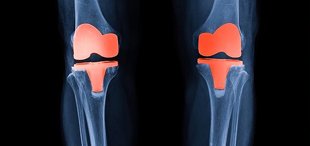 osteonecroza spontană a tratamentului articulației genunchiului)