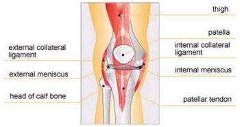 Deteriorarea ligamentelor și menișului articulației genunchiului
