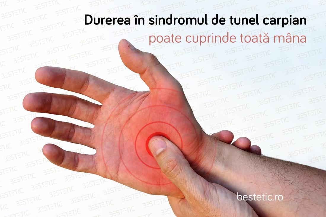 durere la mâna)