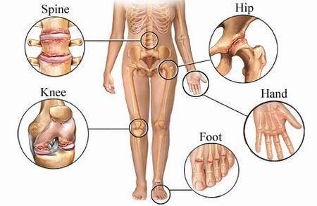 pentru dureri articulare cu artroză artroză