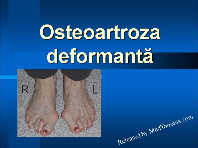 osteoartroza deformantă a tratamentului articulației genunchiului și prețuri