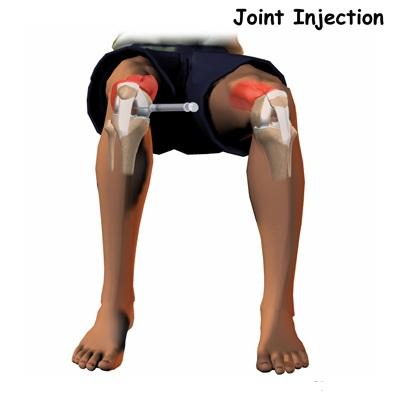 utilizarea de phosterosteron pentru tratamentul genunchiului