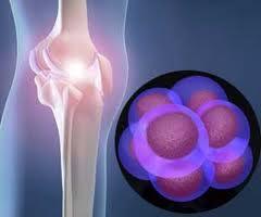 celule stem articulare