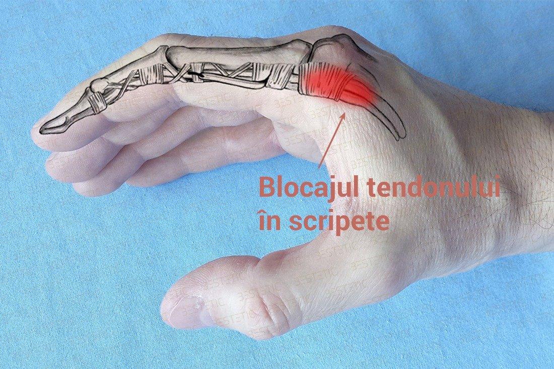 de ce durează articulația degetului pe mână