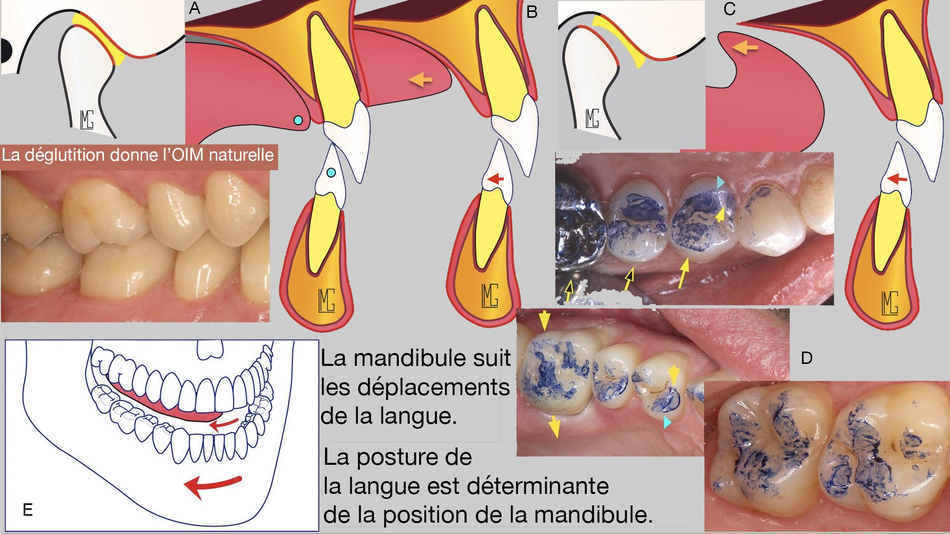 umflarea picioarelor articulațiilor și viței tratamentul articulației umărului uman