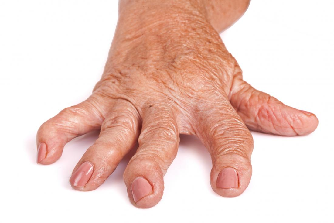 artrita reumatoidă a simptomelor mâinilor