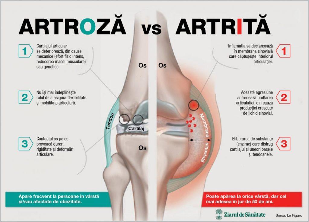 artrite diferențe de artroză și metode de tratament)