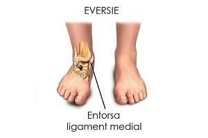 refacerea ligamentelor gleznei după accidentare
