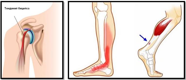 Bilele rostogolite pe tavă şi artroza din genunchi