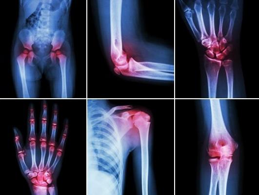 tratarea artrozei genunchiului acasă