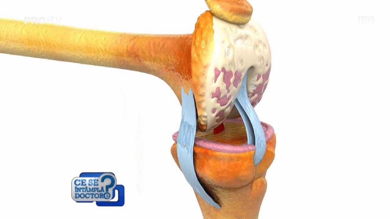 Ruptura de ligamente | CENTROKINETIC