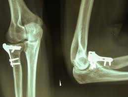 tratamentul fracturii radiale la cot