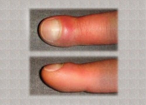 cauze ale umflarea articulațiilor de pe degete)