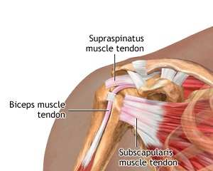 inflamația tendonului în articulația umărului tratamentul artrozei cu bicarbonat de sodiu