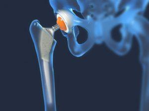 stadiul inițial al tratamentului cu artroza șoldului