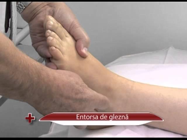 tratamentul unguentului de gleznă