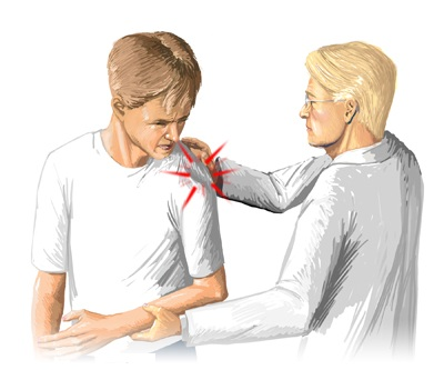 Afecțiuni tratate - Acupunctor