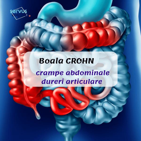 afectarea articulară în boala Crohn recenzii ale regimului de tratament cu artroză