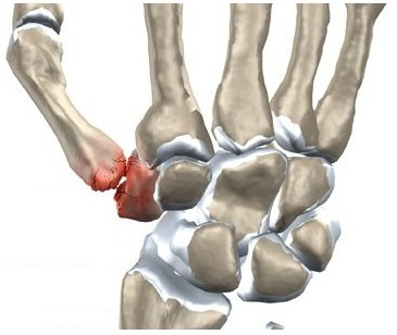 Durere în articulația bazei degetului mare