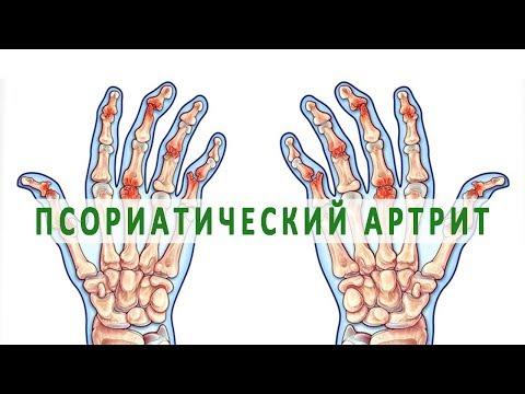 articulațiile rănite din metan)