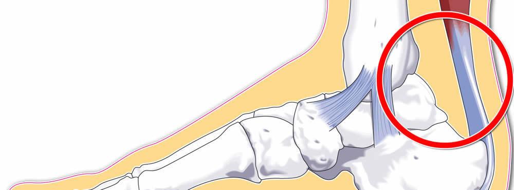 durere în articulația cotului stâng ce este