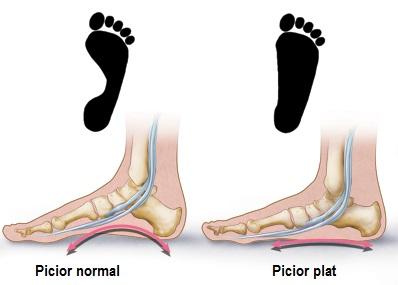artrita articulației piciorului stâng)
