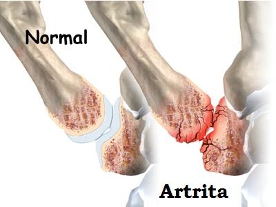 artrita în degetul mare
