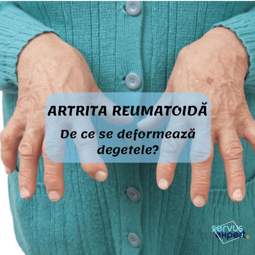 artrita reumatoidă a degetului doi
