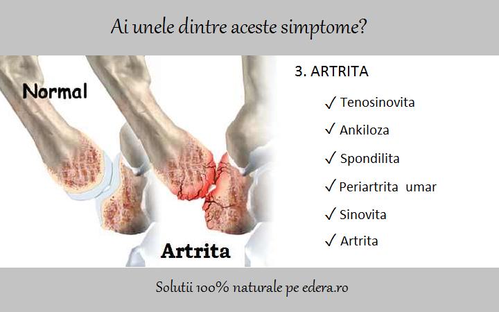 artrita sinovită a articulației gleznei