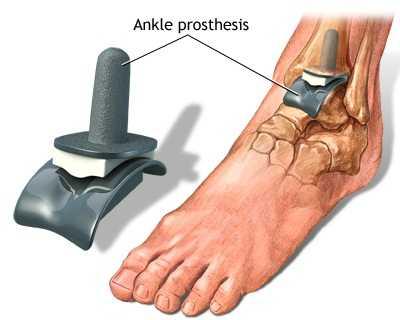 artroza acută a articulației gleznei)