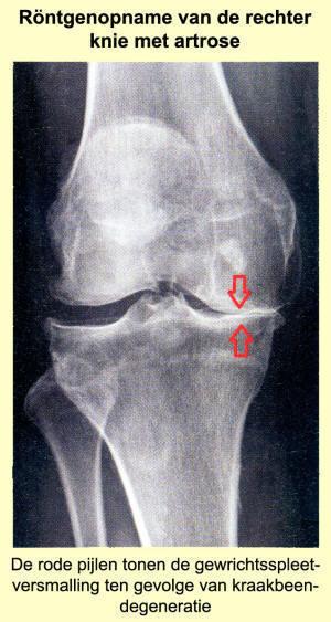 artroza deformantă a articulațiilor încheieturii primului grad)